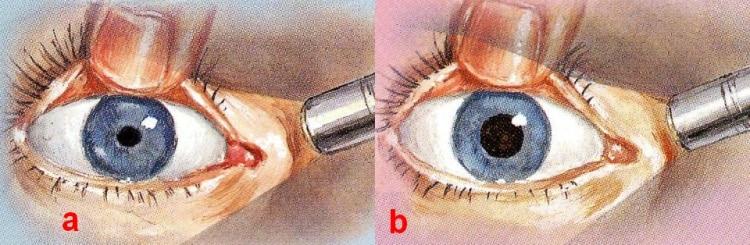 а) нормальная реакция на свет; b) отсутствие реакции